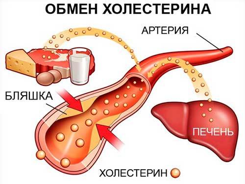 Холестериновая бляшка в паху